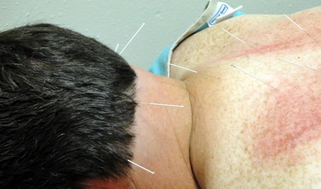 We Offer Acupuncture Services